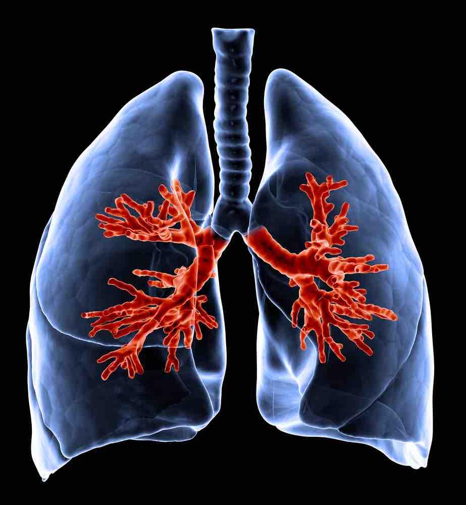 Desencadenantes del asma: cómo evitarlos