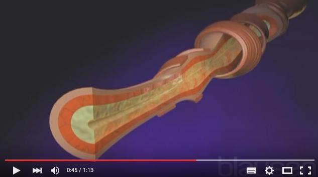 Cómo se produce el asma - Vídeo explicativo