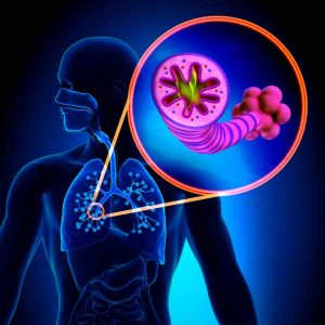 Inflamación bronquial en asma de niños y adultos