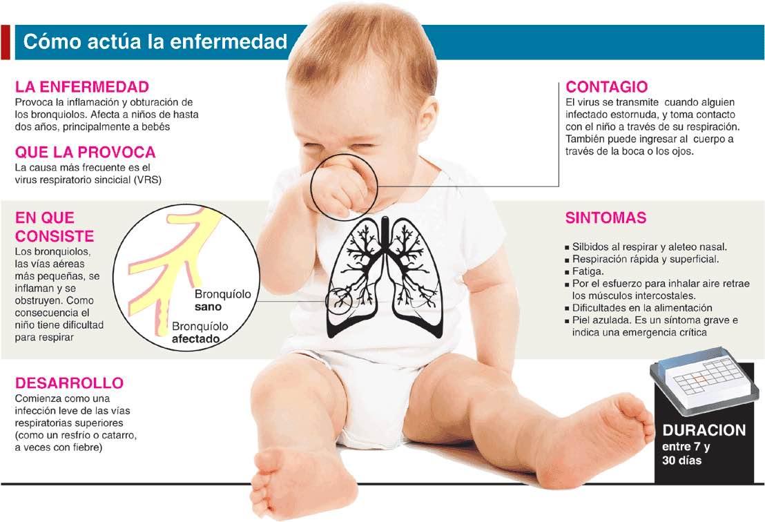 Bronquiolitis en bebés