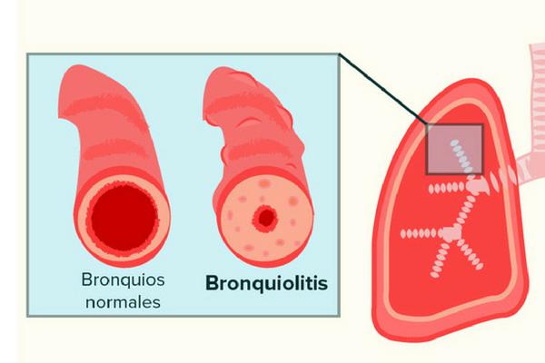 La bronquiolitis produce la mayoría de ingresos pediátricos